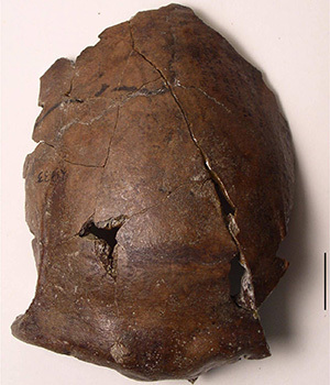 This photo shows the skull bone fragment found outside Aitape, Papua New Guinea, in 1929. The bone has been dated to be about 6,000 years old and likely belongs to the world's first known tsunami victim.