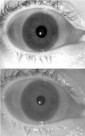 Top: Sample iris image acquired with LG 4000 iris sensor in March 2008. Bottom: Sample image of same iris acquired with LG 4000 iris sensor in March 2011.